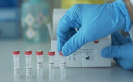 ساخت کیت تشخیص مولکولی کرونا در ۵۵ دقیقه