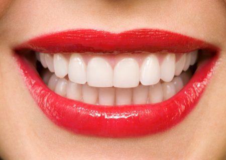 باید و نبایدهای دندانهایی سفید و درخشان